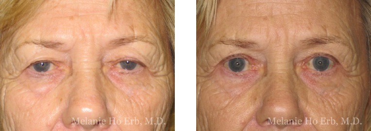 Patient 40 Ptosis Repair Dr. ERb