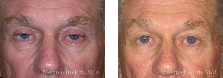 Patient 41 Ptosis Repair Dr. Erb