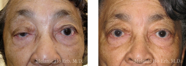 Patient 49 Ptosis Repair Dr. Erb