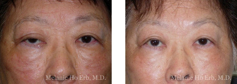 Patient 60 Ptosis Repair Dr. Erb
