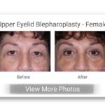 AA Upper Eyelid Bl Female Button