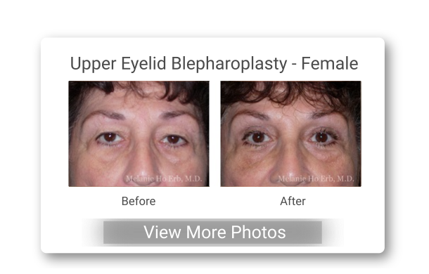 AA Upper Eyelid Bl Female Button