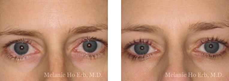 Patient b1-2 Neoplasia Dr. Erb