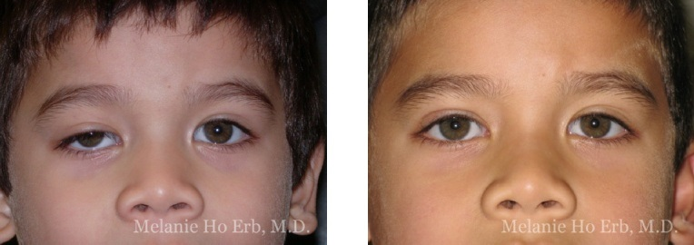 Patient a Pediatric Eyes Dr. Erb