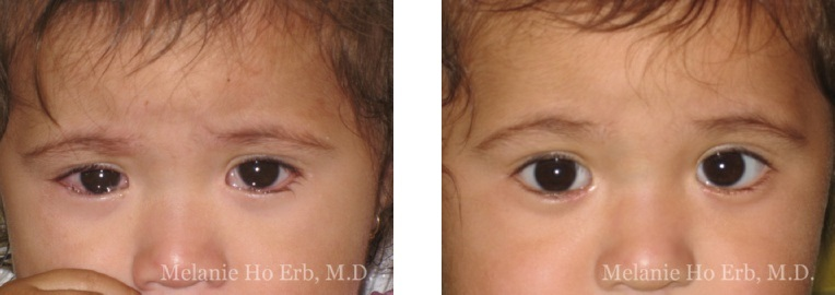 Patient d Pediatric Eyes Dr. Erb