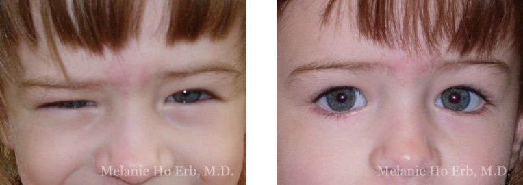 Patient e Pediatric Eyes Dr. Erb
