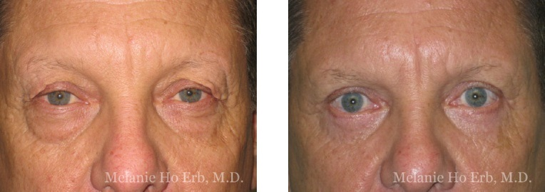 Patient a male Lower Lid Blepharoplasty Dr. Erb