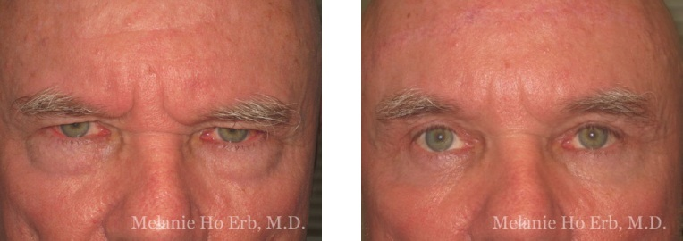 Patient b male Lower Lid Blepharoplasty Dr. Erb
