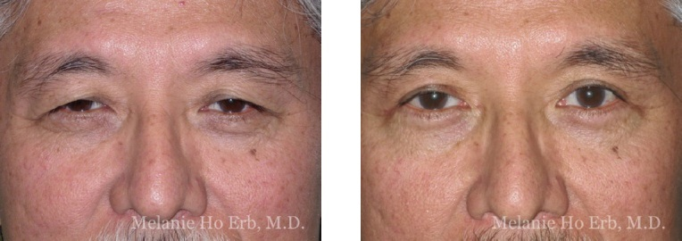 Patient j male Lower Lid Blepharoplasty Dr. Erb