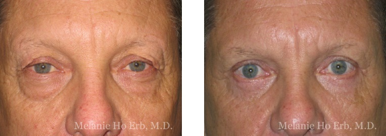 Patient g Upper Lid Male Before and After Dr. Erb