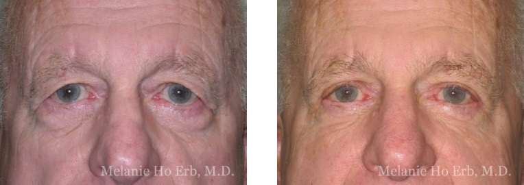 Patient k Upper Lid Male Before and After Dr. Erb