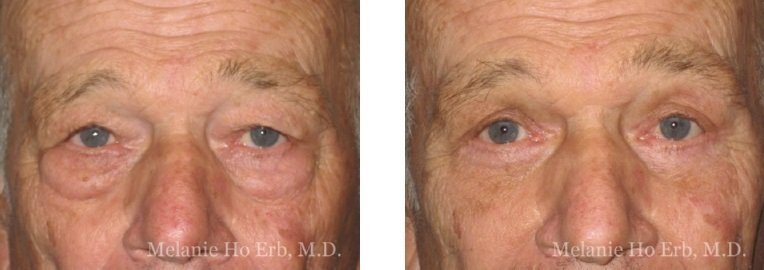 Patient l Upper Lid Male Before and After Dr. Erb