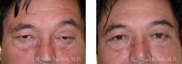 Patient m2 Upper Lid Male Before and After Dr. Erb