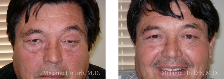 Patient m Upper Lid Male Before and After Dr. Erb