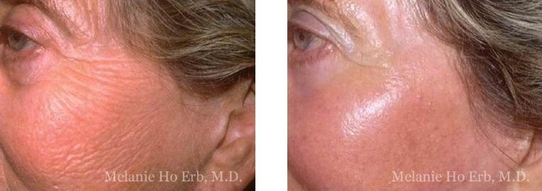 Patient a Laser Dr. ERb
