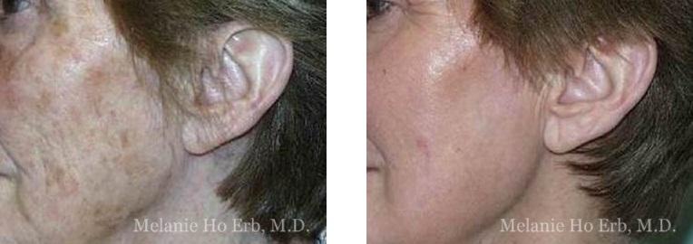 Patient b Laser Dr. ERb