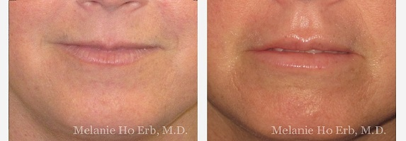 Filler Procedure Before and After conducted by Melanie Ho Erb, M.D.